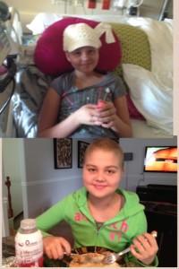 Progression A few weeks after diagnosis vs A few weeks after a bone marrow transplant.